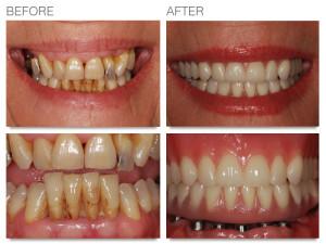 teeth function in speech
